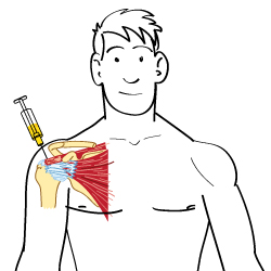 How Steroids Affect the Body